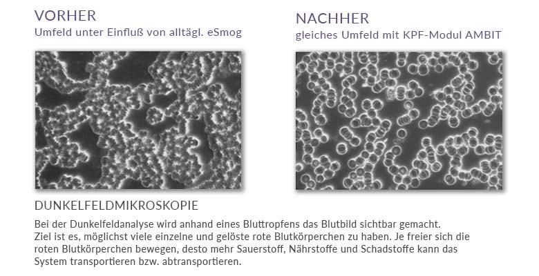 KPF_Blutzirkulation